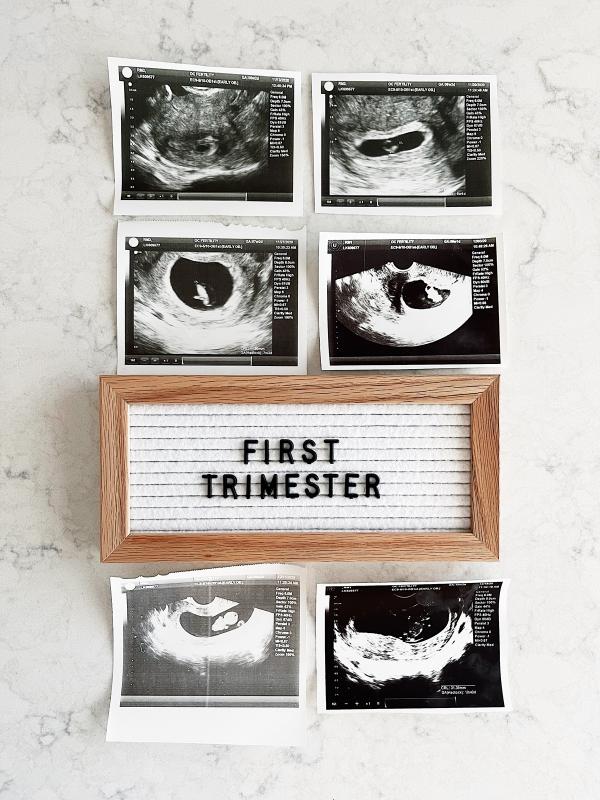 eatsleepwear celebrates first trimester of pregnancy ultrasound photos